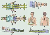 Иммобилизация при помощи подручных средств: а, б - при переломе позвоночника; в, г - иммобилизация бедра; д - предплечья; е - ключицы; ж - голени.